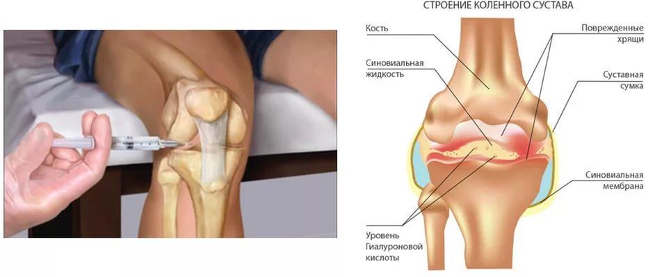 Укол в плечевой сустав цена гематома в коленном суставе